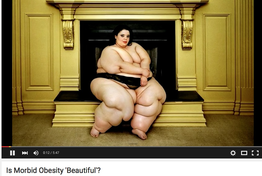 Is Morbid Obesity 'Beautiful'?